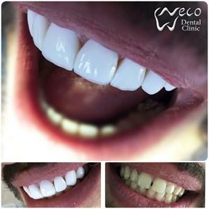 مرکز دندانپزشکی نکو دکتر حمیده سلیمانی