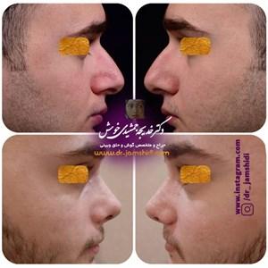 نوبت دهی اینترنتی دکتر خدیجه جمشیدی جراح زیبایی بینی