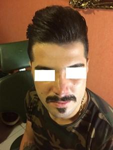 دکتر حسین بوستانی متخصص جراحی پلاستیک